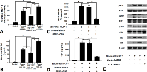 Retinal neuronal monocyte chemoattractant protein-1 (MCP-1) induced by advanced glycation end products (AGEs) stimulates tumor necrosis factor-α (TNF-α) expression in rat microglia via the p38, extracellular signal-regulated kinase (ERK), and nuclear factor-κB (NF-κB) pathways, but not the c-Jun N-terminal kinase (JNK) pathway. A: Real-time PCR was used to measure MCP-1 mRNA expression. B: Enzyme-linked immunosorbent assay (ELISA) was used to measure the soluble MCP-1 concentration. C, D, E: To exclude the effects of MCP-1 and/or TNF-α from the microglia exposed to AGEs in the Transwell apparatus, the primary cultured retinal neurons were pretreated with AGEs (750 μg/ml) in the culture medium for 24 h, then washed with PBS three times and removed AGEs, followed by coculture with the previously described isolated microglia in the Transwell apparatus for another 24 h. C: Real-time PCR was used to measure TNF-α mRNA expression. D: ELISA was used to measure the soluble TNF-α concentration (*p<0.05). E: The levels of phospho-p38, phospho-extracellular signal-regulated kinase (ERK), and the p50 and p65 subunits of NF-κB from the microglial cells increased. However, the levels of phospho-p38, phospho-ERK, and the p50 and p65 subunits of NF-κB from the microglial cells decreased accompanied by CC-chemokine receptor 2 (CCR2) knockdown to retinal microglia in the Transwell culture system with western blotting. Phospho-c-Jun N-terminal kinase (JNK) levels from the microglial cells remained unchanged over the entire experimental period in the retinal neuron–microglia Transwell culture system, and CCR2 knockdown did not lead to downregulation of the phospho-JNK levels.