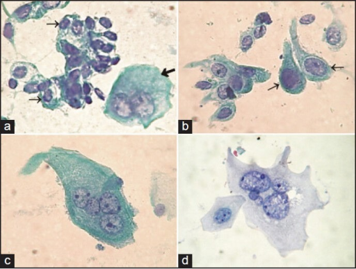 Cytology of the urinary tract. (a) Normal urothelial cells: A group of deep cells with high N/C ratio (thin arrow); umbrella cell (thick arrow) (b) Cells with elongated cytoplasm arising from the renal pelvis (arrow) (c) A big multinucleated umbrella cell showing microvacuolated cytoplasm (voided urine) (d) Umbrella cell obtained from bladder washing, similar to that showed in Set C, but with better nuclear details (Pap, ×400)