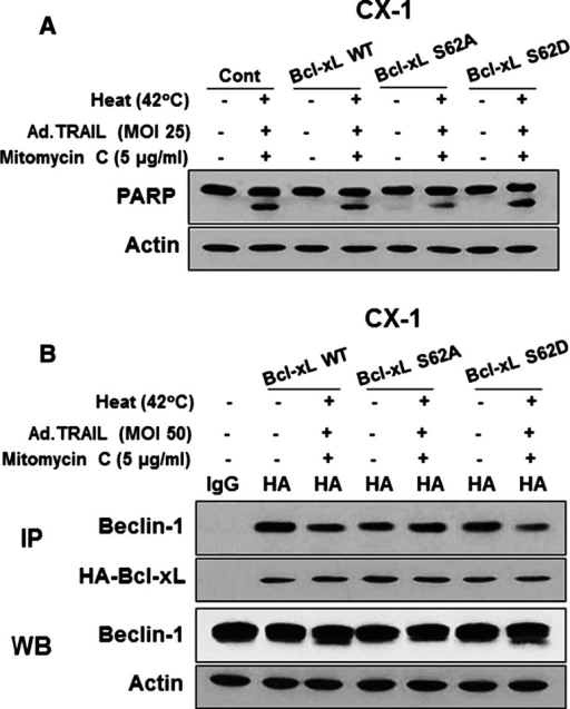 Role of Bcl-xL in apoptosis. CX-1 cells were stably transfected with HA-Bcl-xL WT, HA-Bcl-xL S62A or HA-Bcl-xL S62D plasmid and then treated with Ad.TRAIL (MOI 25) and/or mitomycin C (5 µg/mL) for 24 h and exposed to normothermia (37 °C) or hyperthermia (42 °C) for 1 h, and then incubated for 3 h at 37 °C. a After treatment, lysates containing equal amounts of protein were separated by SDS-PAGE and PARP cleavage was detected by immunoblotting. Actin was used as an internal standard. b Cell lysates were immunoprecipitated with anti-HA antibody or mock antibody (IgG) and immunoblotted with anti-Beclin-1 or anti-HA antibody (upper panels). The presence of Beclin-1 and actin in the lysates was examined (lower panels)
