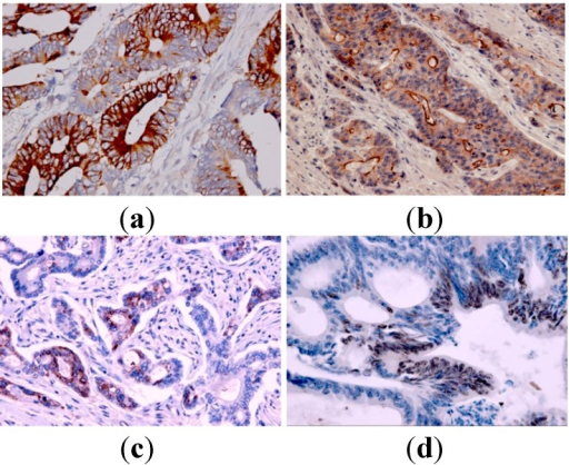 Representative images of immunohistochemical staining for carboxylesterase 2 (CES2), breast cancer resistance protein 2 (ABCG2), thymidylate synthase (TS) and Topo-I in tissues of metastatic colorectal cancer (original magnification 200×). (a) Positive cytoplasmic CES2 expression; (b) Positive membranous and cytoplasmic ABCG2 expression; (c) Positive cytoplasmic TS expression; (d) High nuclear Topo-I expression.