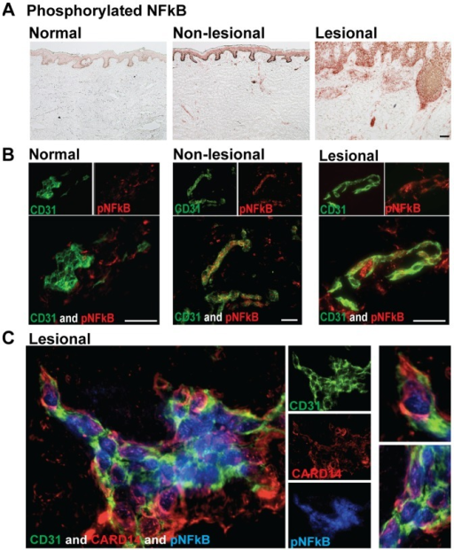 Phosphorylated NF-κB (pNF-κB) was upregulated in psoriatic skin and dermal pNF-κB co-localized with CARD14+ ECs.(a) Immunohistochemistry of pNF-κB in normal, non-lesional, and lesional frozen skin sections. (b) Two-color immunofluorescence of CD31 (green) and pNF-κB (red) in normal, non-lesional, and lesional skin. Representative images; bar = 10 µm. (c) Triple-color immunofluorescence staining of CD31 (green), CARD14 (red), and pNF-κB (blue) in lesional skin. Representative images at 63X magnification; enlarged images are shown to the left.