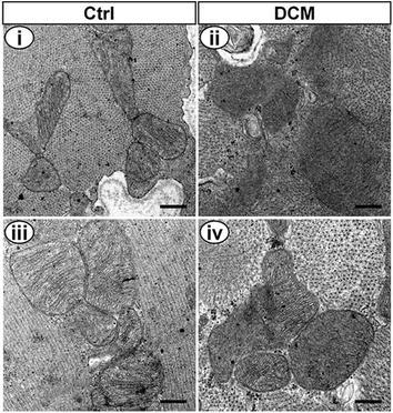 Transmission electron microscopy of Ctrl and DCM rat hearts. Bar 400 nm (i, ii), bar 325 nm (ii, iv). i, iii The ultrastructure of cardiomyocyte in Ctrl rats showed typical symmetric myofibrils, clear outline of mitochondria, integrated mitochondrial membrane and well-organized cristae. ii, iv The ultrastructure of cardiomyocyte in DCM rats showed severe mitochondria damage, disordered myofibrils arrangement