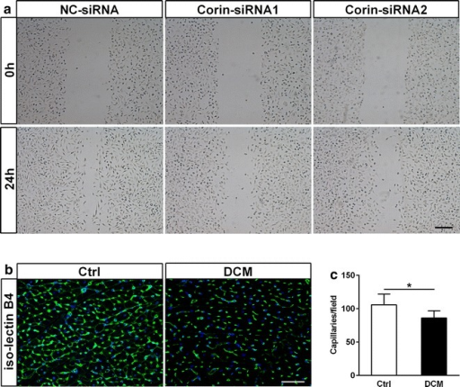 Defect of corin was associated with endothelial dysfunction. a The wound healing scratch assay showed the effect of culture supernatants of H9c2 cardiomyoblasts transfected Corin-siRNA or NC-siRNA on EA.hy926 cells migration at 0 and 24 h. Bar 250 μm. b, c Reduced capillary and arteriole densities in DCM rat myocardium were detected by confocal fluorescence microscope. Capillary and arteriole densities were stained by iso-lectin B4 (green) in rat hearts, nuclei were stained with Dapi (blue). Bar 50 μm (n = 5 to 6 rats for each group). For quantification, 4 or 5 randomly selected fields from each rat myocardial tissue under ×400 magnification were analyzed. Data are presented as mean ± SD. *P < 0.05 versus Ctrl