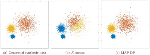 Clustering performed by K-means and MAP-DP for spherical, synthetic Gaussian data, with unequal cluster radii and density.The clusters are well-separated. Data is equally distributed across clusters. Here, unlike MAP-DP, K-means fails to find the correct clustering. Instead, it splits the data into three equal-volume regions because it is insensitive to the differing cluster density. Different colours indicate the different clusters.