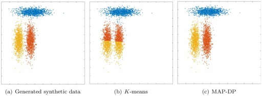 Clustering solution obtained by K-means and MAP-DP for synthetic elliptical Gaussian data.All clusters share exactly the same volume and density, but one is rotated relative to the others. There is no appreciable overlap. K-means fails because the objective function which it attempts to minimize measures the true clustering solution as worse than the manifestly poor solution shown here.