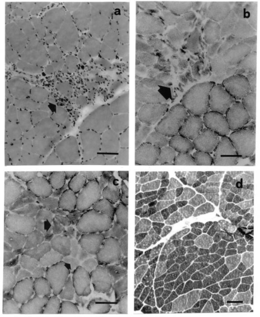Micrographs from sections of tibialis anterior muscle from patients with peripheral occlusive disease before reperfusion procedure (calibration: 100 μm). (a) Eosin-hematoxylin. (b) SDH; phagocytosis and necrotic muscle fibres (arrows). (c) Myosin-ATPase, acid preincubation; small groups of atrophic angular muscle fibres (arrows), and fibre size diversity. (d) NADH; small areas of fibre-type grouping.