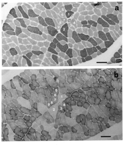 Micrographs from serial adjacent section of the same field (each muscle fibre stained differently in a and b is marked with a number) of rectus abdominis muscle (used as control) before the reconstructive surgery (calibration 150 μm). (a) Myosin-ATPase (acid preincubation), (b) NADH; normal appearance.