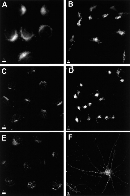 Syntaxin 13 localization in different cell lines. Cells  were fixed with 4% paraformaldehyde, permeabilized with saponin, and stained using affinity-purified rabbit anti-syntaxin 13 antibody and followed by incubation with FITC-labeled anti–mouse  IgG antibodies before processing for confocal microscopy. (A)  CHO; (B) AtT-20; (C) NRK; (D) PC12; (E) NIH3T3; (F) 15 d in  vitro hippocamapal neurons. Bars: (A–E) 5 μm; (F) 10 μm.