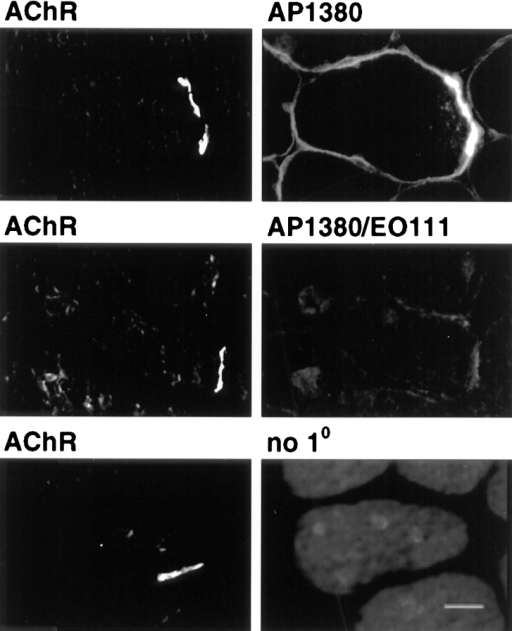 Specificity of immunolabeling of VGSCs. Digitized images of transverse sections of rat soleus muscle were dual labeled  with FITC α-BgTx to identify AChRs at the NMJ and antibody  to VGSCs (AP1380); antibody to VGSCs preincubated with the  immunogenic peptide against which it was raised (AP1380/EOIII)  or no primary antibody (diluent). All were visualized with TRITC  secondary antibody. The images are printed so that the intensity  levels in each column are comparable. Bar, 20 μm.