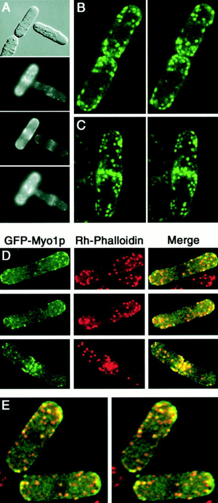 Localization of GFP-Myo1p in mid-log wild-type haploid cells. (A) Differential interference contrast and GFP-Myo1p fluorescence in live cells at three different focal planes. (B–C) Stereo pairs of three-dimensional reconstructions of live cells expressing GFP-Myo1p showing localization of Myo1p patches at cell periphery. (D–E) Colocalization of GFP-Myo1p and actin in fixed cells stained with rhodamine-phalloidin shown as full thickness stack of images from three-dimensional reconstructions (D) and as stereo pair (E). Images were obtained by a conventional fluorescence microscope (A) or a deconvolution Deltavision microscope (B–E).