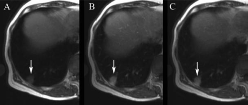 A case of focal organizing pneumonia in a 52-year-old woman. The dynamic MRI scans with fast spin-echo sequence were acquired before (A) and 3 min (B) and 8 min (C) after gadopentetate dimeglumine injection. Dynamic MRI reveals a nodular lesion (arrow) showing an early and strong enhancement peak and slight washout pattern.