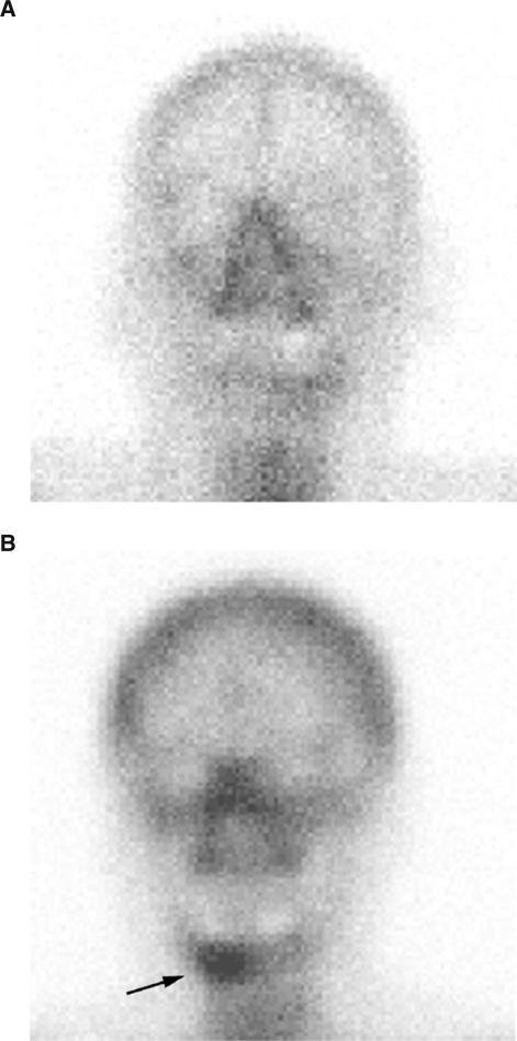 (A,B) Scintigraphy of a patient with an OSCC with (A) and without (B) infiltration of the mandibular bone. Technetium 99m MDP bone scans with planar imaging and SPECT were performed in the course of the staging. No increased activity is visible in (A), but a lesion of the right mandible is seen in (B) (arrow). For the chromatograms of these patients see Figure 3A and B.