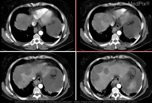 CT with contrast reveals multiple subserosal liver metastases  over the dome of the liver.