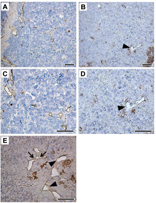 Representative morphology and vessel profile in orthotopic NB xenografts. Vehicle-treated tumors (control) contained a larger number of small vessels (stained in brown) (A, C) compared to CHS 828 (20 mg/kg/day; p.o.) treated tumors (B, D-E) already 10 days after randomization. Vessels of control tumors had a thin endothelial cell lining (brown) (A, C). CHS 828 treated tumors revealed vessels only partly surrounded by endothelial cells (arrowheads) (B, D-E) or endothelial cells detaching from the basement membrane (arrows) (E). C and D are magnifications of A and B, respectively. Bandeiraea simplicifolia-1 (BS-1) lectin staining (brown); bar = 40 μm.
