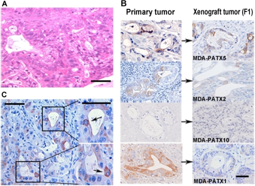 Histologic analysis of patient and direct xenograft tumors for expression of ALDH1.(A) Representative image demonstrating the histologic appearance of direct xenograft tumors established from freshly resected pancreatic tumors. Note tumor-gland formation and associated peri-tumoral stroma. (B) Comparison of ALDH1 expression in four different direct xenograft tumors to ALDH1 expression in original (parental) patient tumors. The pattern and location of ALDH1 expression is maintained during the xeno-transplantation process as reflected in derived xenograft tumors. An example of undetectable ALDH1 expression in both the patient tumor and derived direct xenograft is shown in the third panel from the top (MDA-PATX10). (C) Intra-tumoral heterogeneity of ALDH1 expression in direct xenograft tumors is readily identified as only a subset of luminal tumor cells demonstrate intense staining for ALDH1 relative to all other cells within tumor. Scale bar  = 125 µm (A), 180 µm (B), 125 µm (C).