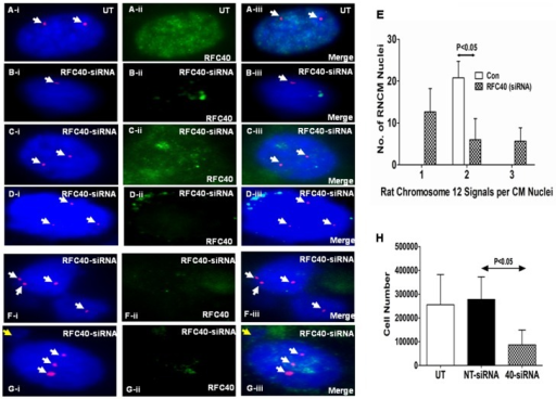 Endogenous knock-down of RFC40 in rat neonatal cardiac myocytes results in chromosomal missegregation/aneuploidy. Rat Neonatal cardiac myocytes (RNCMs) were isolated as described previously and grown in 12 well plates and 2-chambered slides for 48 hr. RNCMs were then treated with non-targeting-siRNA (NT) and On-Target plus smartpool RFC40-siRNA respectively, for 72 hr. (A–D and F–G) RNCMs grown in 2-chambered slides were subjected to FISH analysis following treatment with RFC40-siRNA. Untransfected (UT) and RFC40-siRNA-RNCM slides were co-hybridization with the Cen12-ROX probe (Red). Nuclei were counterstained with DAPI antifade (Blue). RFC40 knock-down was confirmed by performing immunohistochemical analyses for RFC40 (A–D-ii and F–G-ii; Green) in each sample. Merge images are shown in A–D-iii and F–G-iii. Panels A–D represents RNCM nuclei aneuploidy and panels F–G represent chromosomal missegregation. White arrows point to Cen12-ROX signals. Yellow arrow points to micronuclei in G-i & iii. (E) Graph represents the number of signals for Cen12-ROX observed per RNCM nuclei in the UT and RFC40-siRNA treated samples. Fifty RNCM nuclei in control and RFC40-siRNA treated samples from three individual experiments were measured. (H) Before lysing the cells grown in 12-well plates for western blot analyses (Fig. S4), the RNCMs (n = 3) were trypsinized, resuspended in 1X PBS and counted using a hemocytometer. Graph represents the number of RNCMs vs the different RNCM treated samples. Values are mean ± SE. * indicates P<0.05 vs. Untransfected (UT).