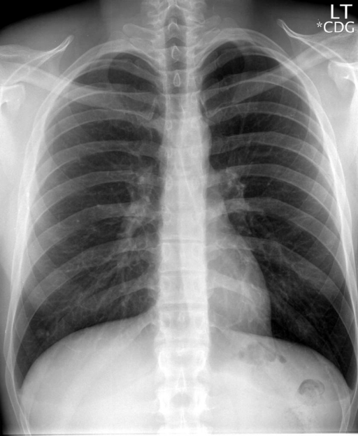 PA and lateral chest radiographs.