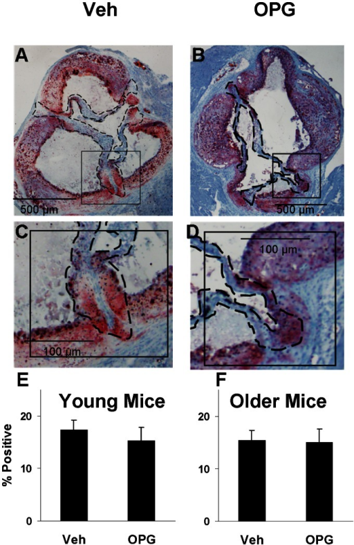 Lipid in the aortic valve.Oil Red-O staining is equally abundant in Older vehicle-treated mice (A,C) and OPG-treated Older mice (B,D). Group data for Younger mice (E) and Older mice (F). N = 7–8; p = NS for Veh vs. OPG.