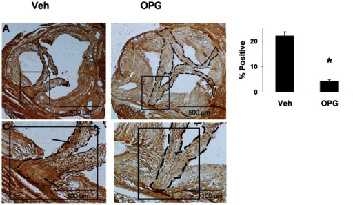 Immunostaining for osteocalcin in the aortic valve in Older mice.In vehicle-treated mice (A,C), osteocalcin (dark brown) is abundant near the cusp base (arrows). There is only scant staining in the valve of an OPG-treated mouse (B,D). N = 4. *p<0.05 Veh vs. OPG.