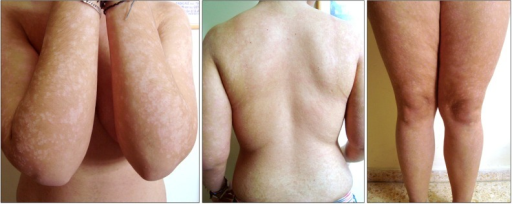 Patient lesions in January 2011, erythematous scaly plaques over 80% of her total body surface (SCORing atopic dermatitis [SCORAD]: 23).