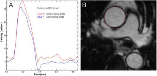 A) Time-Velocity curves derived using PMI software to calculate foot-foot delay (curve in ascending aorta is shifted over the measured delay as a visual verification of the result) B) Aortic cross sectional measurements made by manual planimetry (red contour) of the ascending aortic endovascular-blood pool interface at minimal and maximal distension.