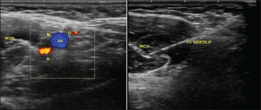 Axillary block and the anatomical localisation of nerve | Open-i