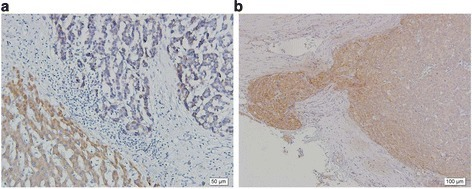 Expression of plectin and FAK phosphorylation in hepatocellular carcinoma. (a) Immunohistochemical analyses on the paraffin-embedded samples of human hepatocellular carcinomas and non-tumor liver tissues were detected by the use of anti-plectin antibody (×200). Plectin was detected with stronger signals in non-tumor liver tissue (lower left area) whereas HCC tissues showed weak signals (upper right area). (b) The results of immunohistochemical analysis on paraffin-embedded samples of HCC tissues by using anti-FAK antibody. The expression FAK was higher at the invasive front of tumor. In contrast, the central part of tumor revealed lower FAK expression with weak signals.