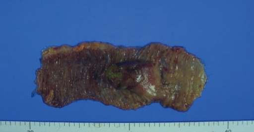 A grayish polypoid mass, measuring 4 cm × 2.8 cm in size that was removed from the jejunum.