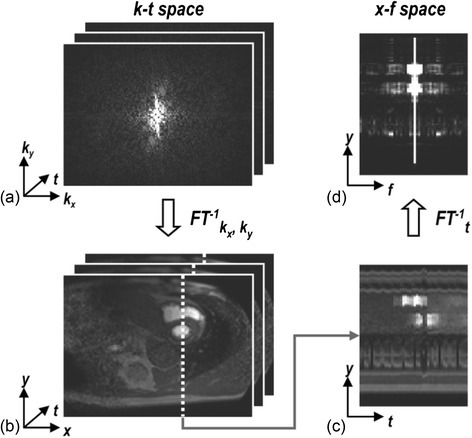 'Domains' in FPP. Sets of raw data acquired through time are said to be in k-t space (a). Through a Fourier transform in the spatial dimensions this can be converted to a set of dynamic images (b), which can be examined for a single line of this data through time (c) known as x-t space. A Fourier transform of (c) in the temporal dimension then yields x-f space (d). Reproduced from [80]
