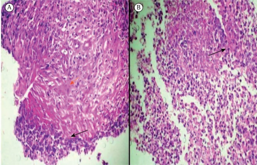 Lung biopsy. In A, fibrin and collagen deposition (red arrow) surrounded by cell debris (dark arrow), with an area of necrosis. In B, inflammatory infiltrate with multinucleated cells (dark arrow) and central necrosis.