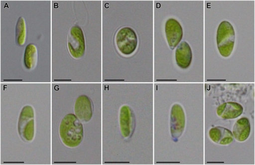 Morphology of Coccomyxa melkonianii SCCA048.A-D. Morphological plasticity of vegetative cells, E-F. Cells containing two plastids, G. Accumulation of lipid droplets in the cytoplasm, H-I. Formation of small mucilaginous caps, J. Mature cells (note the autospore formation at the bottom left cell). Scale bars = 5 μm.