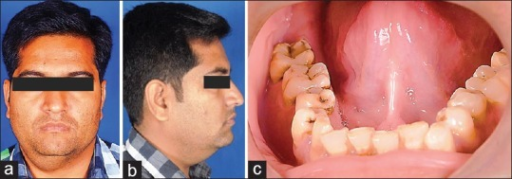 (a) Diffuse swelling present on right submandibular and submental region extending into the neck till the midline. (b) Diffuse swelling present on right submandibular and submental region. (c) Intraorally no abnormal findings were seen