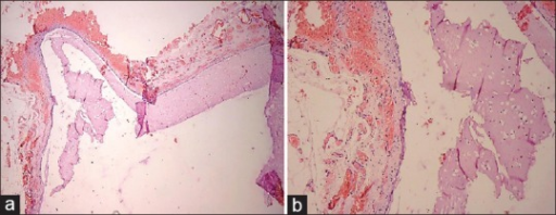 (a) Photomicrograph, showing cystic lumen formed by cystically dilated vascular lymphatic channels containing pinkish eosinophilic proteinicious lymphatic fluid along with lymphoplasmacytic cell infiltration (H and E, ×10). (b) Photomicrograph of cystic hygroma showing cystic lumen lined by single flattened endothelium layer (H and E, ×20). The connective tissue wall is loosely fibroblastic with engorged capillaries, adipocytes and extravasated red blood cells