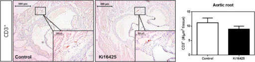 Total CD3+ T-cell numbers in the aortic root show no difference between the control and Ki16425-treated groups.CD3+ cells in the aortic root of the hearts were determined upon manual quantification. No difference was observed in the CD3+ expressing cells of the aortic root upon LPA1/3 inhibition. All values (n = 12/grp) are depicted as mean ± SEM.