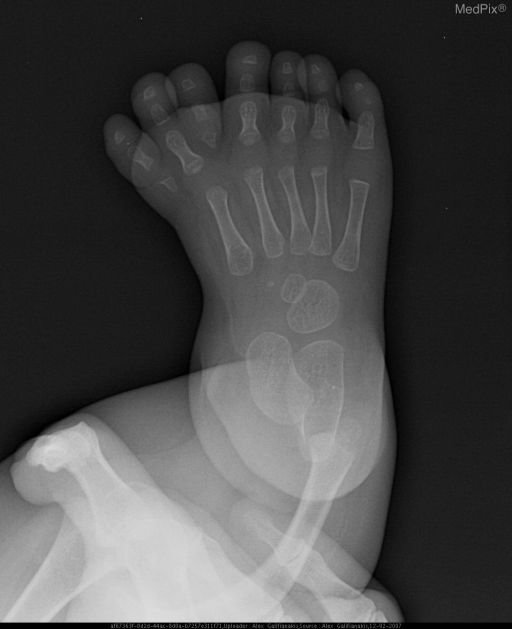 Seven digits with pre-axial polydactyly.