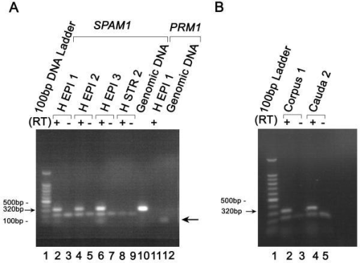 The presence of steady-state SPAM1 mRNA as detected by LM/RT-PCR of the lysate recovered from human epididymal epithelial cells (H EPI, test) and stromal cells (H STR, control). RNA was subjected to first strand synthesis with (+) or without (-) reverse transcriptase (RT), followed by PCR amplification. The expected 320 bp band for the SPAM1 cDNA fragment is seen in A) for Subjects 1–3 in Lanes 2, 4, 6, for RT(+) reactions. This band was verified to be SPAM1 by sequencing. No 320 bp band is detected in Lanes 3, 5, 7, in the absence of RT showing that the SPAM1 bands are not from DNA contamination. In Lanes 8 and 9 no SPAM1 bands are detected for the stromal cells, but one is seen in Lane 10 for genomic DNA, the positive control. In Lane 11, no sperm-specific band for PRM1 cDNA could be amplified from the cDNA of epithelial cells of Subject #1, verifying the homogeneity of the cells. In Lane 12 the 110 bp band (arrowed on the right) is the PRM1 DNA fragment amplified from genomic DNA, as a positive control. A band of the same size should be generated from the cDNA in the presence of mRNA from the lysate. Note that the primer cloud for SPAM1 is not present for PRM1 in Lanes 11 and 12. In B) the 320 bp band in Lanes 2 and 4 are from the corpus of Animal #1 and the cauda of Animal #2, respectively. They were also verified to be SPAM1 by sequencing. The marker, 100 bp ladder, is shown in Lane 1 of both A) and B). The same results were obtained for replicate experiments.