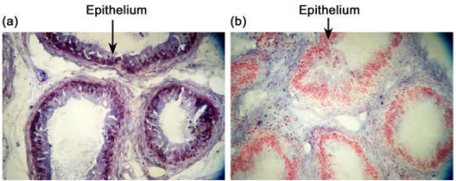 In situ hybridization localization of SPAM1 transcripts in human corpus epididymal epithelium. Histological sections were hybridized with either an anti-sense (A) or sense (B) SPAM1 RNA probe. SPAM1 transcripts localized by immunolabeling appear as a purple stain in the epithelium of (A). This stain is absent from the negative control (B) which shows only the neutral red counterstaining and which was incubated for the same period of time as A) in the developing solution.