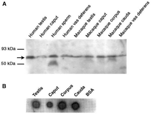 A). Western blot analysis of protein extracts from testis, epididymis, vas deferens and sperm of human (Subject #2) and macaque #1. Equal amounts (40 μg) of protein were loaded in each lane. The arrow points to the ~64 kDa SPAM1 band in all samples. This experiment was repeated three times. A 53 kDa band is also seen for human sperm, while the epididymis shows weaker bands (partially degraded products) at ~60 kDa. In both species the vas deferens show a weak <50 kDa band. B) Dot blot analysis of protein extracts from macaque testis, caput, corpus, and cauda. Bovine serum albumin (BSA) was used as a negative control. Equal volumes with approximately equal amounts of protein (40 μg) were blotted for each tissue.