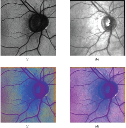 Another example of AF-IR fusion results: (a)AF image, (b) IR image, (c) HVS method, (d) TV-IR method.