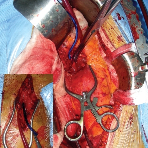 Temporary aortofemoral shunt from the perirenal aorta to the right femoral artery, allowing perfusion of the pelvic renal allograft during aortic cross-clamping.