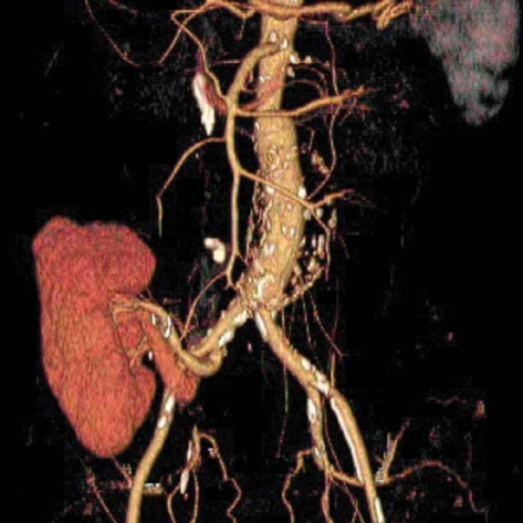CT angiographic image showing a well-functioning aortic graft and a renal allograft.