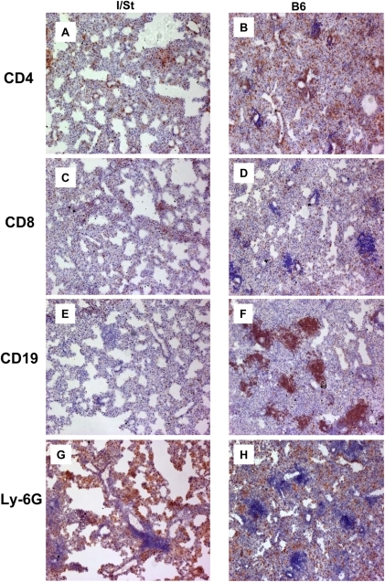 The picture of leukocyte infiltration of the lung tissue of I/St (left) and B6 (right) mice infected with 2×103 CFU of M. avium via aerosol route 8 weeks earlier.Peroxidase immune staining with hematoxylin counter-staining (×150). Cell populations are indicated on the left side. See text for the description.
