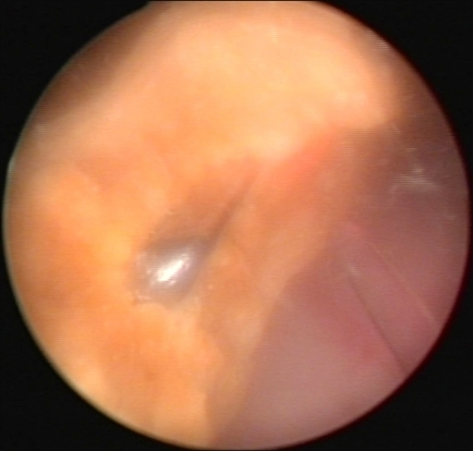 Cystoscopic view of a bladder stone that formed around a metal clip.
