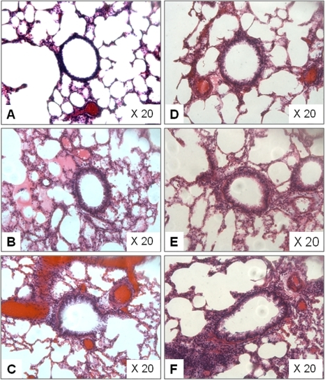 Representative histological images of H&E stained rats' lung.(A) Saline treatment plus 0 µg/ml nano-SiO2 exposure. (B) Saline treatment plus 40 µg/ml nano-SiO2 exposure. (C) Saline treatment plus 80 µg/ml nano-SiO2 exposure. (D) OVA treatment plus 0 µg/ml nano-SiO2 exposure. (E) OVA treatment plus 40 µg/ml nano-SiO2 exposure. (F) OVA treatment plus 80 µg/ml nano-SiO2 exposure. Slices microscopically examined at original magnification of 20× (Leica DM 4000B, Germany).