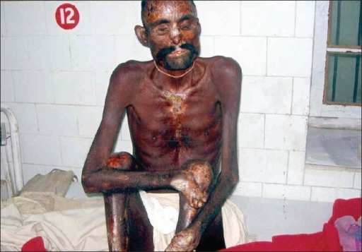Clinical photograph showing emaciated male with mutilation and scarring of face and extremities