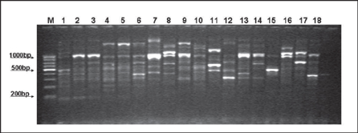 Representative banding profiles associated with ERIC2 RAPD PCR in P. aeruginosa isolated from horses. Lane M: Molecular weight marker (100 bp); lane 1: genotype A; lanes 2 and 3, genotype B; lanes 4, 5 and 9, genotype C; lane 6, genotype D; lanes 7 and 13, genotype E; lane 8, genotype F; lane 10, genotype G; lane 11, genotype H; lane 12, genotype H; lane 14, genotype J; lane 15, genotype K; lane 16, genotype L; lane 17, genotype M; lane 18, genotype N.