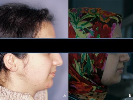 Oral facial soft tissue exam record, video teen beach sex
