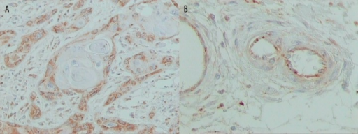 RCAS1 expression in (A) peripheral cell layers around keratin pearl (original magnification ×200) and (B) endothelial cells in the vicinity of tumor nests (original magnification ×400). Streptavidin-biotin-peroxidase, DAB chromogen, Harris hematoxylin counterstain.