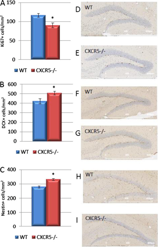 Effect of CXCR5 deficieny on neurogenesis in the adult dentate gyrus. (A) In CXCR5-/- animals the number of Ki67 positive cells was significantly reduced compared to WT controls (P = 0.009; n = 6 per group). (B) In CXCR5-/- animals the number of DCX positive cells was significantly increased compared to WT controls (P = 0.02; n = 6 per group). (C) In CXCR5-/- animals the number of Nestin positive cells was significantly increased compared to WT controls (P = 0.0008; n = 6 per group). Representative images of Ki67 (C, D), DCX (E, F) and Nestin (H, I) staining.