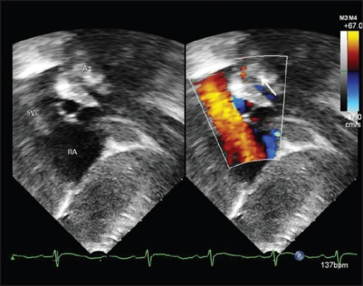Post-natal echocardiography sub-xiphoid view showing a dilated SVC with the venous channel (azygos vein) running parallel to the descending aorta (arrow) and joining the SVC. SVC = superior vena cava; RA = right atrium; Az = azygos vein